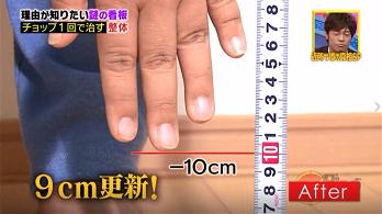 施術後 -10cm